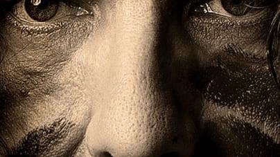 Lee Harvey Osmond: Beautiful Scars